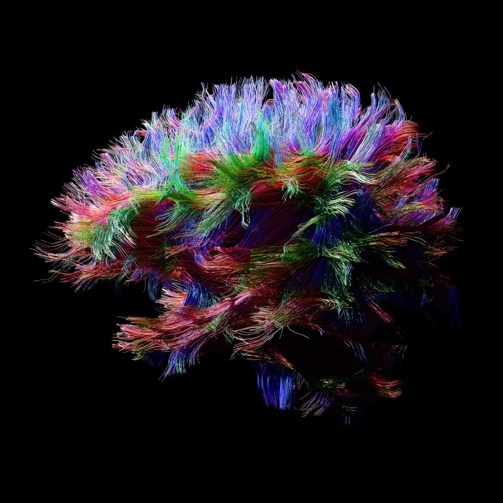 3e_db06_csr_brainmodel_dti
